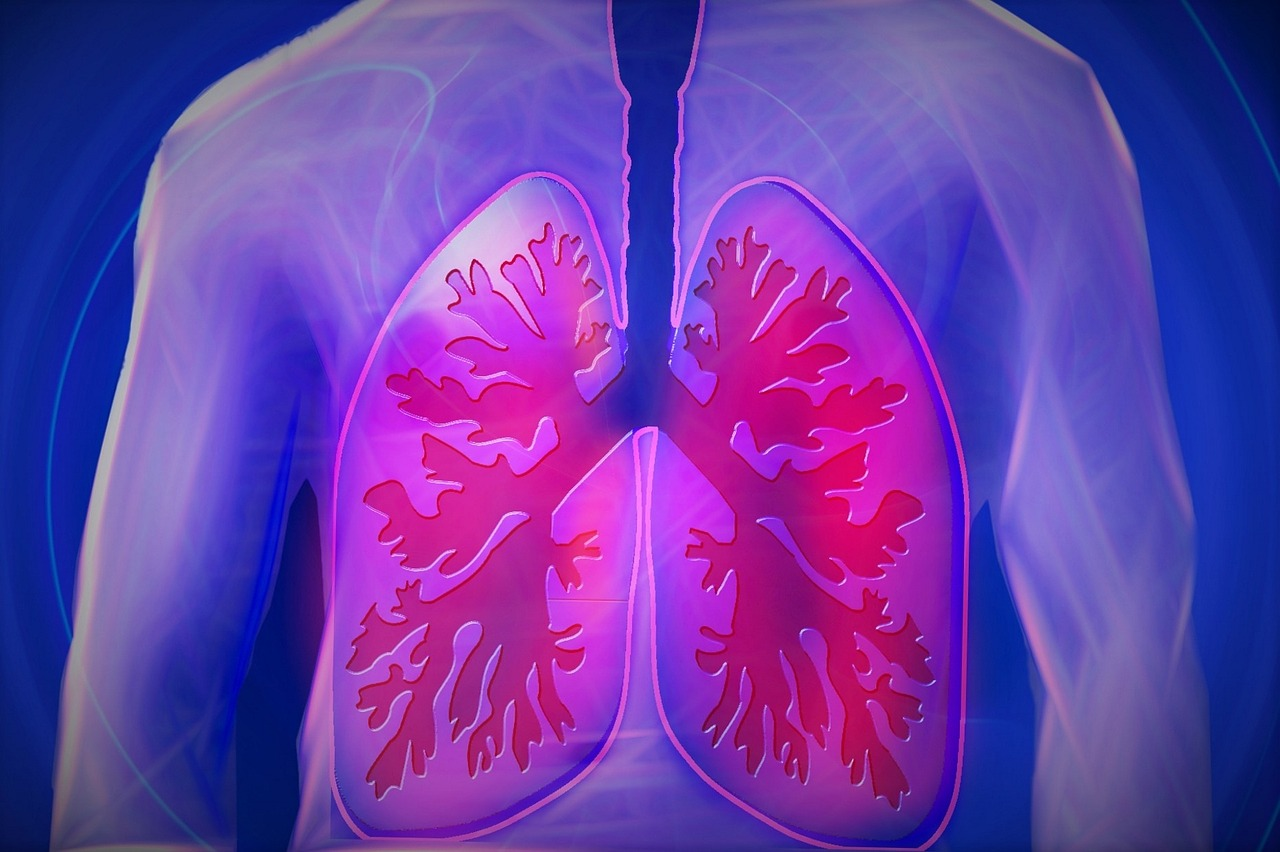 Lung Cancer – Symptoms, Stages, Treatment and Survival Rate.